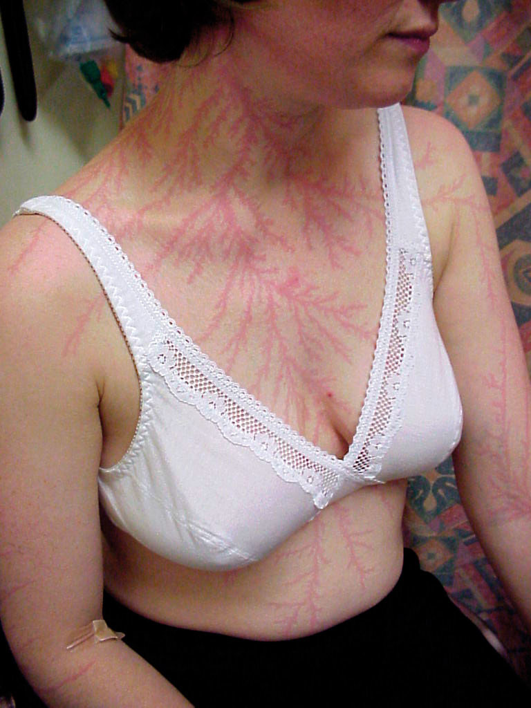 A Beautiful Body Modification Made by Nature