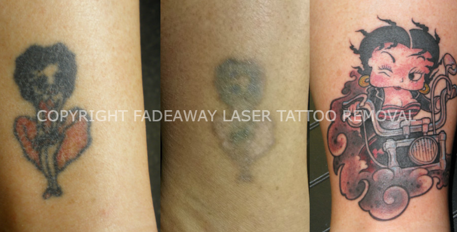 Best Tattoo Cover-Ups